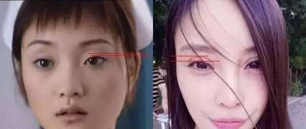 雙 眼皮 不 對稱